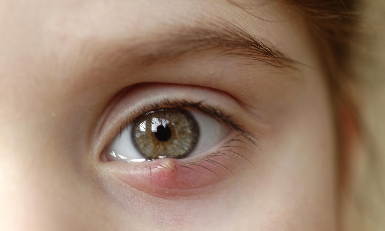 שעורה בעין אצל ילדים