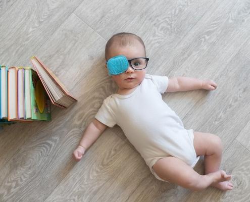 עין עצלה אצל תינוקות